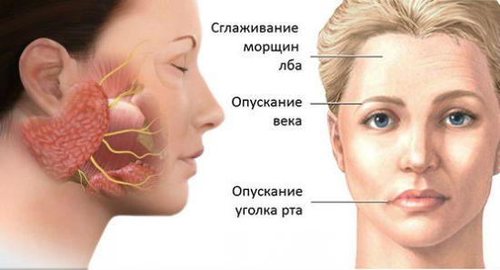 Внешние изменения при артрите ВНЧС