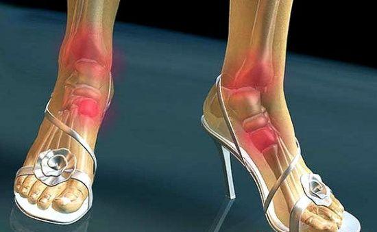 Боль в голеностопе при ходьбе на каблуках