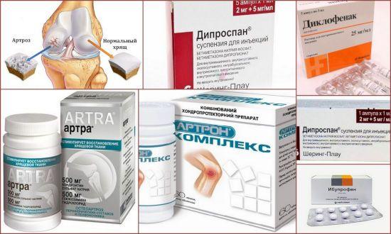 Препараты для лечения суставов