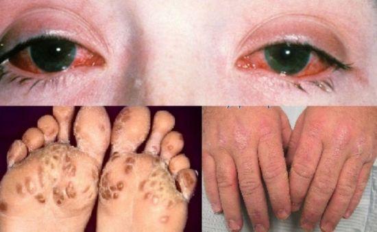 Проявления синдрома Рейтера