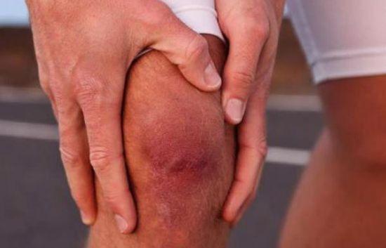 Воспаленный коленный сустав