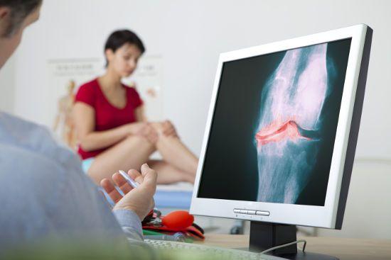 Снимок коленного сустава на компьютере