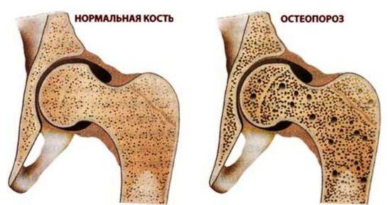 Остеопороз кости