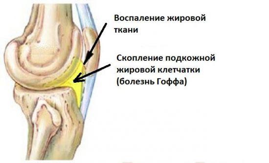 Воспаление жировой ткани в колене