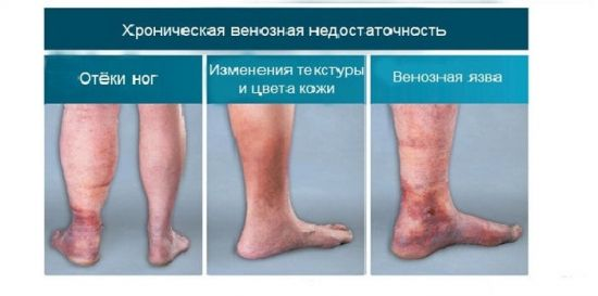Ноги при венозной недостаточности