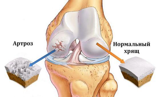 Болят ноги описание боли thumbnail