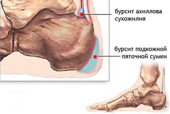 Бурсит пяточной кости