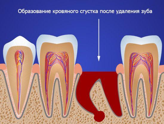 Кровяной сгусток после удаления зуба