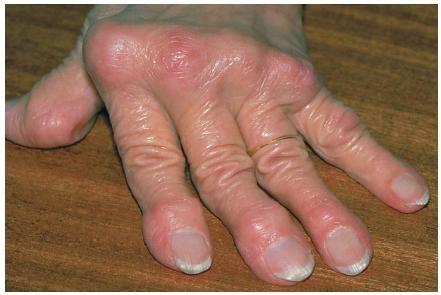 Воспаленные суставы руки