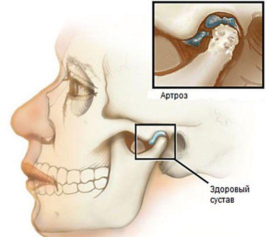 Артроз височно-челюстного сустава
