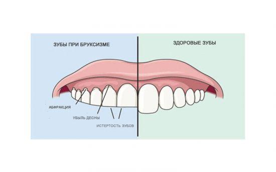 Зубы при бруксизме