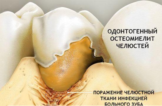 Одонтогенный остеомиелит