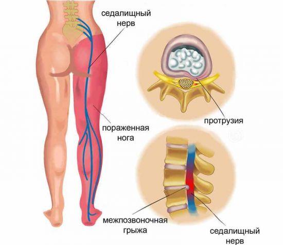 Ущемление седалищного нерва