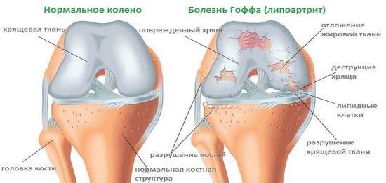 Жировая ткань на коленном суставе
