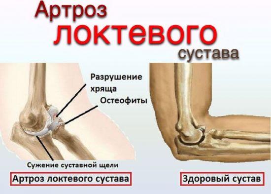 Артроз локтевого сустава