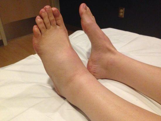 Болят суставы левой ноги thumbnail
