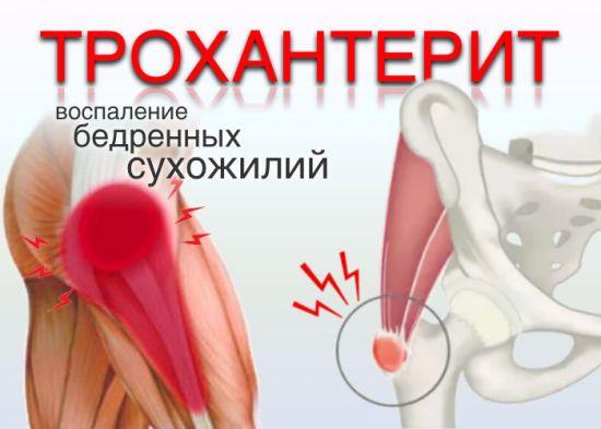 Воспаление бедренных сухожилий