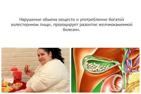 Ожирение и камни в желчном