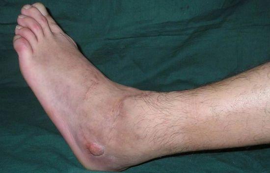 болит ступня ноги около пальцев thumbnail