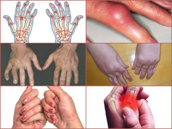 Руки при псориазе