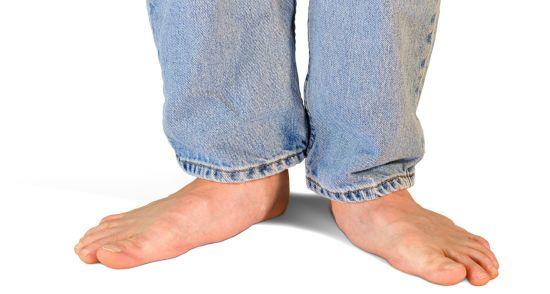 Плоские стопы