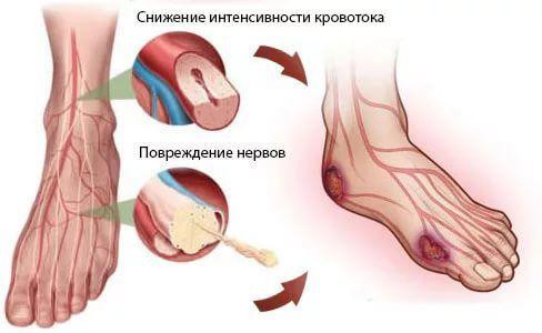 Кровообращение в ногах при диабете