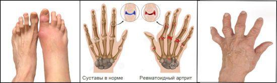 Суставы при равматоидном артрите