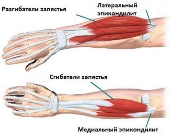 Эпикондилит