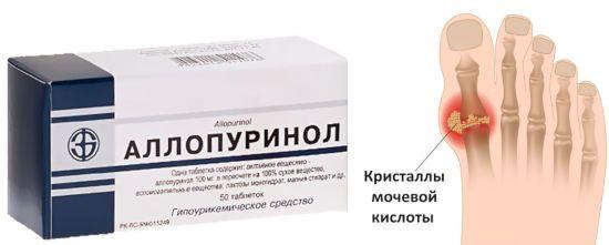 Аллопуринол и мочевая кислота в пальце