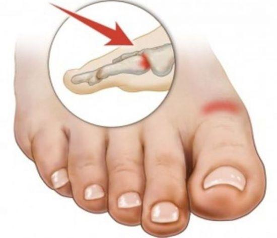 Боль в суставе пальца ноги