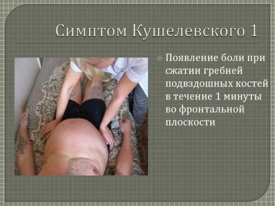 Симптом Кушелевского 1