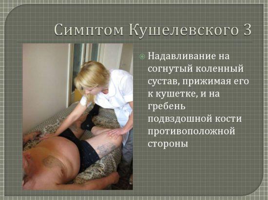 Симптом Кушелевского 3