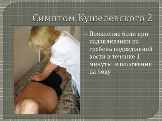 Симптом Кушелевского 2