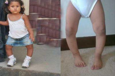 Девочка с кривыми ногами