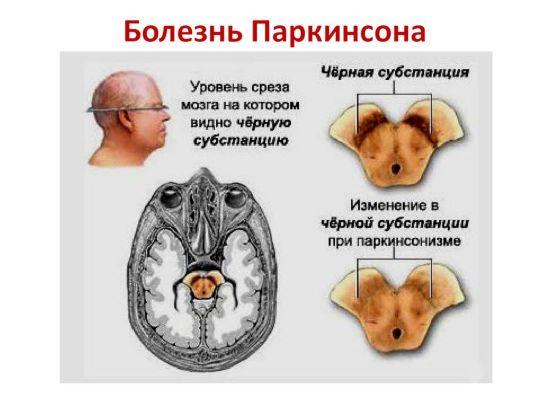 Мозг при Паркинсона