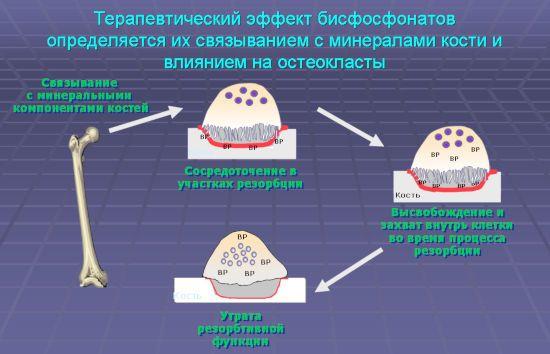 Работа бисфосфонатов