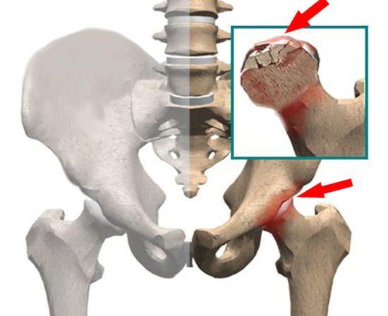 пораженный тазобедренный сустав