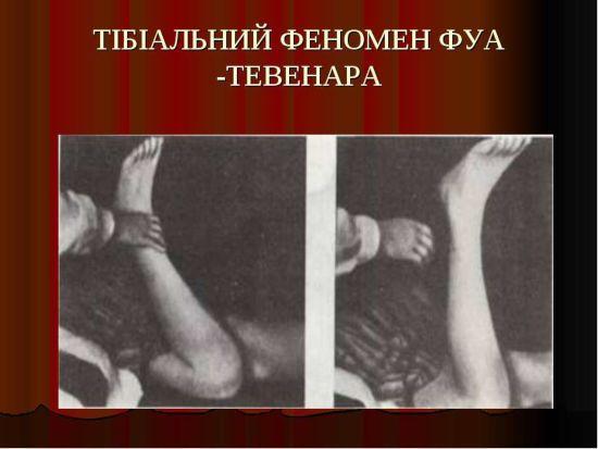 Феномен Фуа-Тевенара