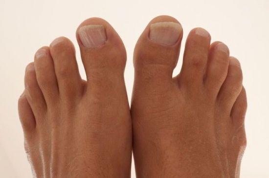 Лечение бурсита мизинца ноги thumbnail