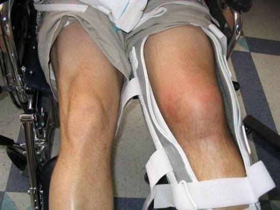 Зафиксированный коленный сустав