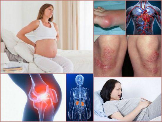 Боли в суставах у беременных