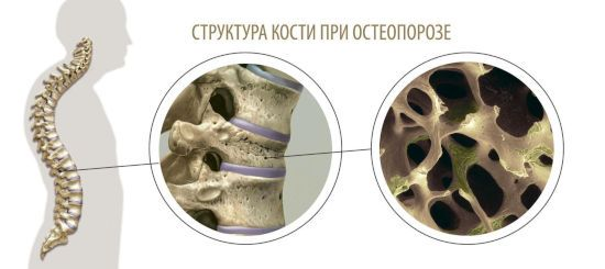 Кости при остеопорозе