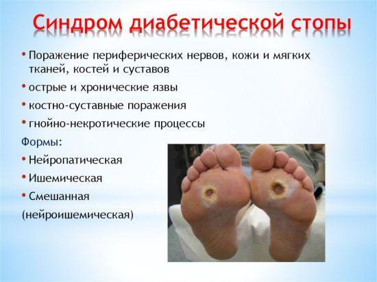 Симптомы диабетической стопы