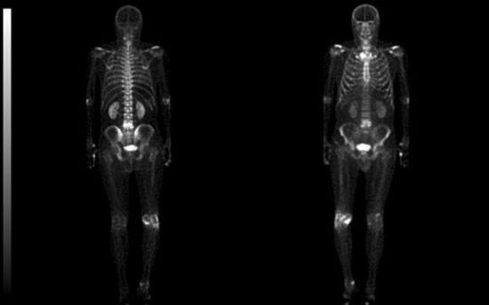 два скелета