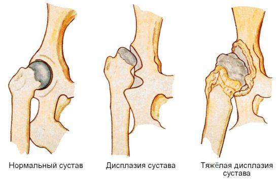 Смещение головки бедренной кости