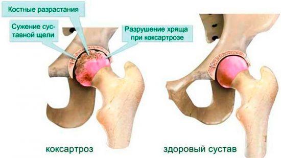Разрушенный сустав