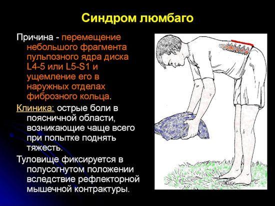 Синдром люмбаго