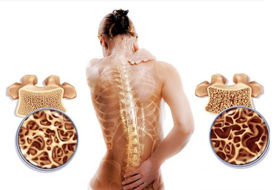 Костная ткань при остеопорозе