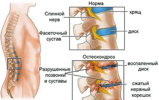 Схема развития остеохондроза