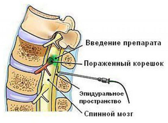 Введение эпидуральной анестезии